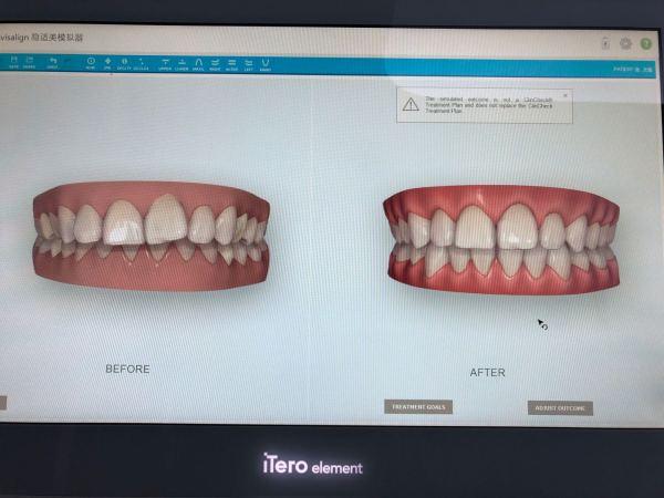 牙谷医院集团亿大口腔连锁新年全面升级,引进人工智能诊疗系统,全息数字化黑科技给您更舒适的看牙体验