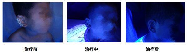 冻伤会导致的白癜风吗?郑州西京白斑医院怎么说
