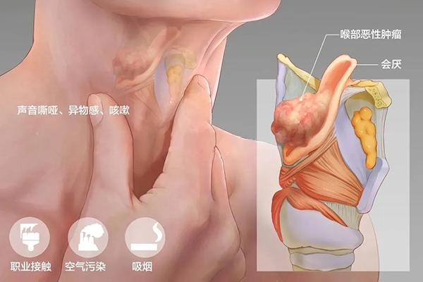 成都民生耳鼻喉专科医院治喉癌费用 省市医保定点机构